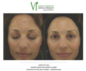 woman-with-melasma